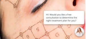 Dermapure Thermage Greeting Live Chat